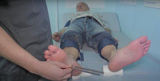 Диабет можно распознать по ногам. Инструкция врачей